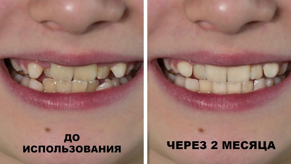 Кривые зубы: что делать?