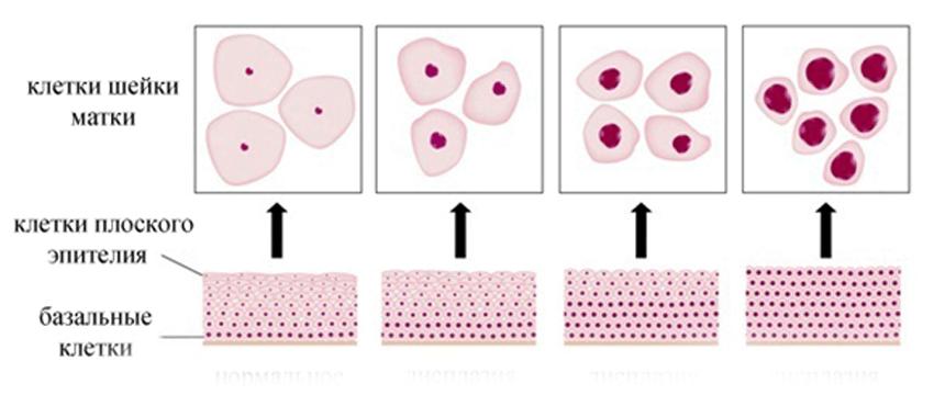 Зоны трансформации шейки матки