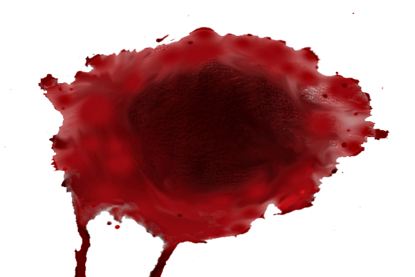 Сгустки крови при месячных, похожие на печень патология или норма?