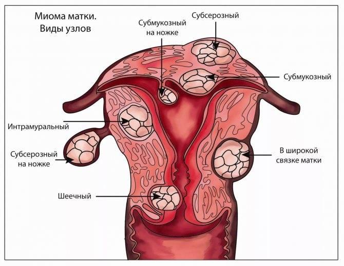Виды миомы матки: субсерозная, субмукозная, интрамуральная