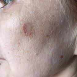 Красный плоский лишай у человека. фото, стадии, признаки, лечение. клинические рекомендации