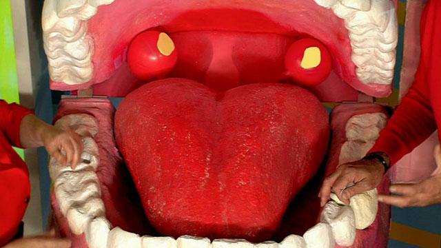 Абсцесс гортани — гнойное воспаление лимфоидной ткани, осложнение после инфекционных заболеваний