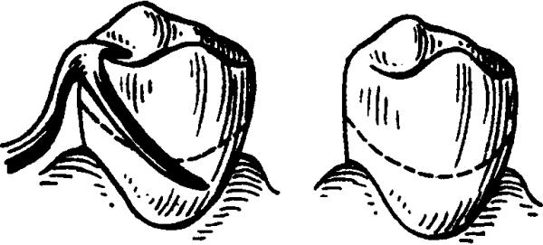 В чем преимущества бюгельного протеза на кламмерах?