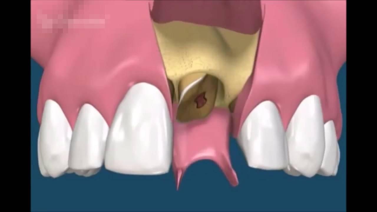 Как быть, если после удаления зуба остался осколок