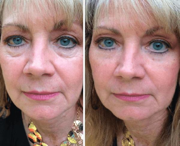 Ретиноевая мазь от морщин – медпрепарат для омоложения и красоты кожи