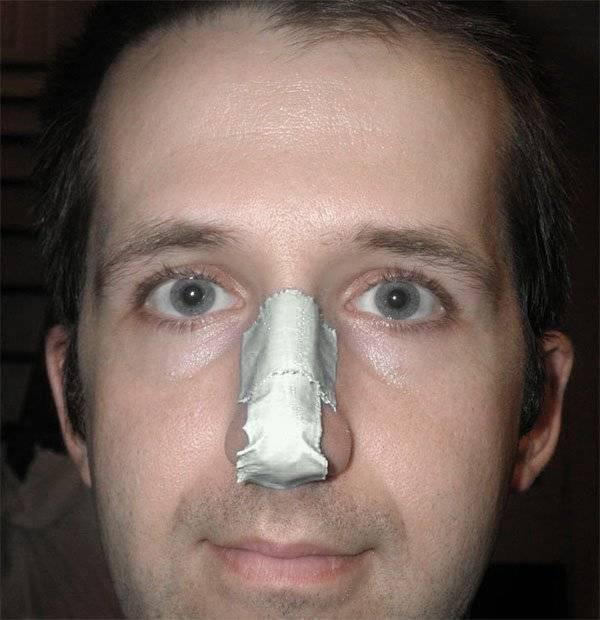 Симптомы и лечение перелома носа у взрослых и детей