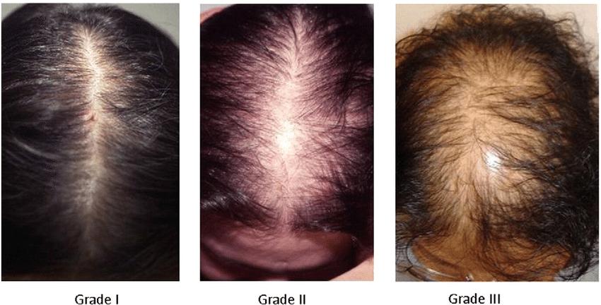 Очаговая (гнездная) алопеция у мужчин, женщин и детей. причины и лечение