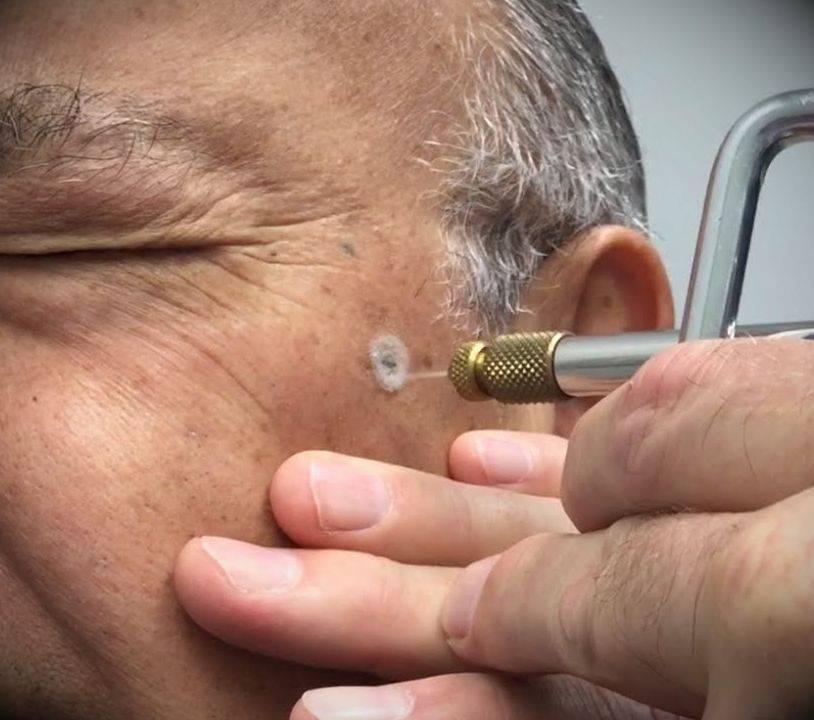 Повторное прижигание бородавки жидким азотом