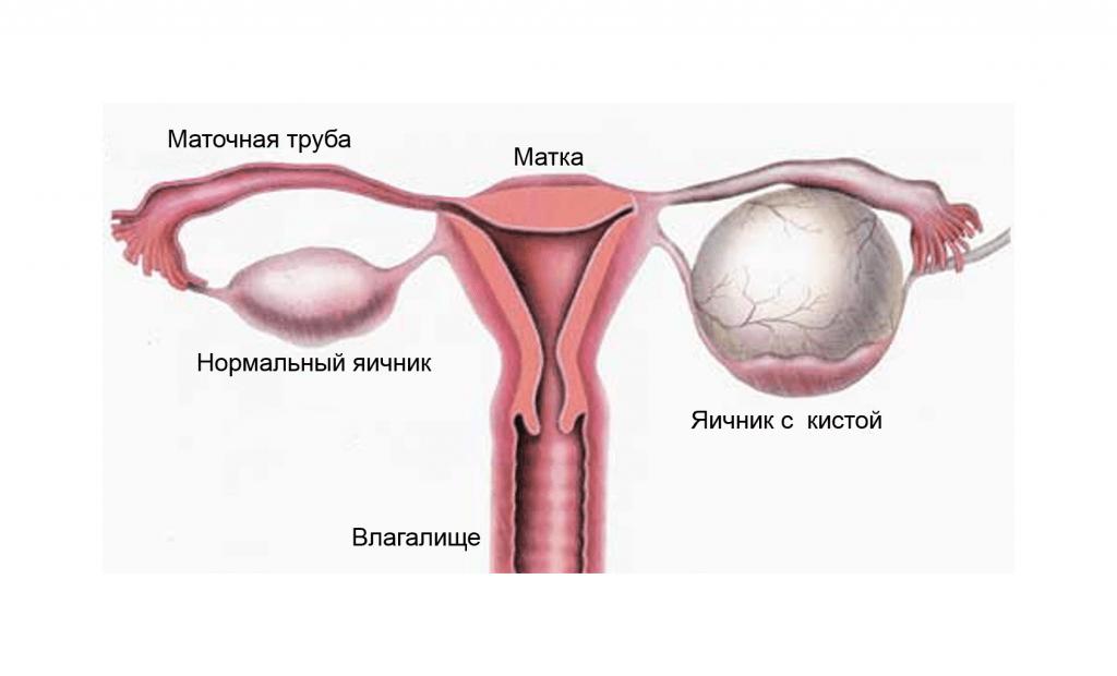 Кистозное образование левого яичника