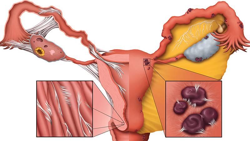 Внутренний эндометриоз