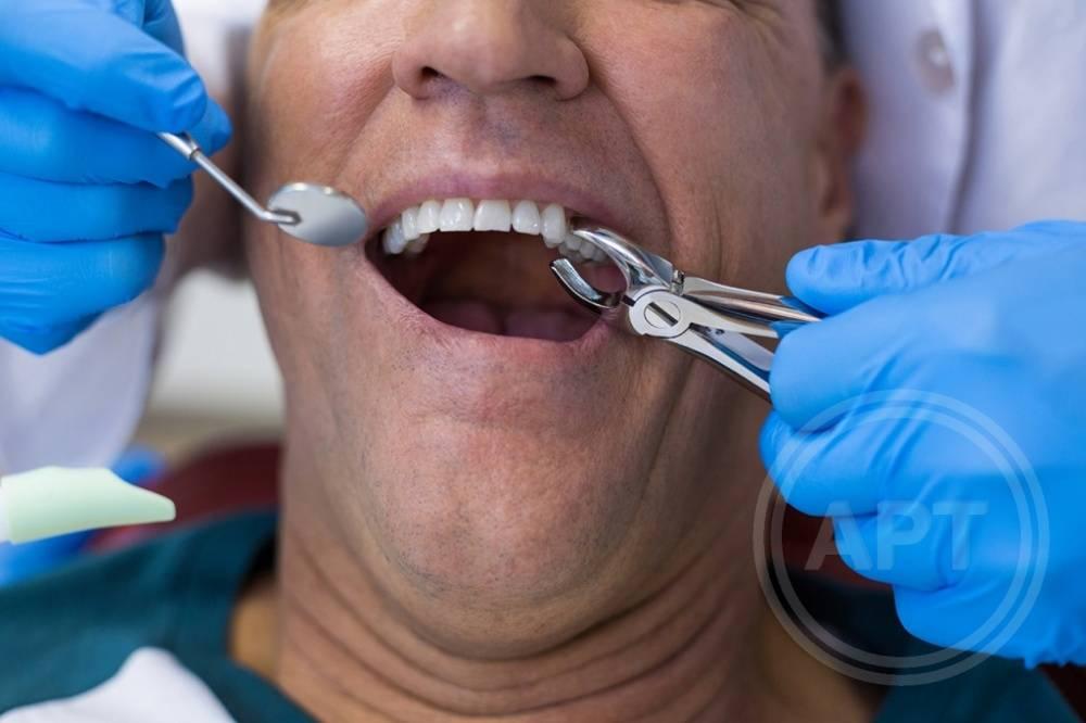 Как чистить зубы после удаления зуба