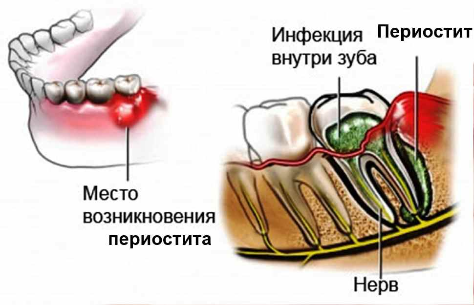Периостит лечение в домашних условиях