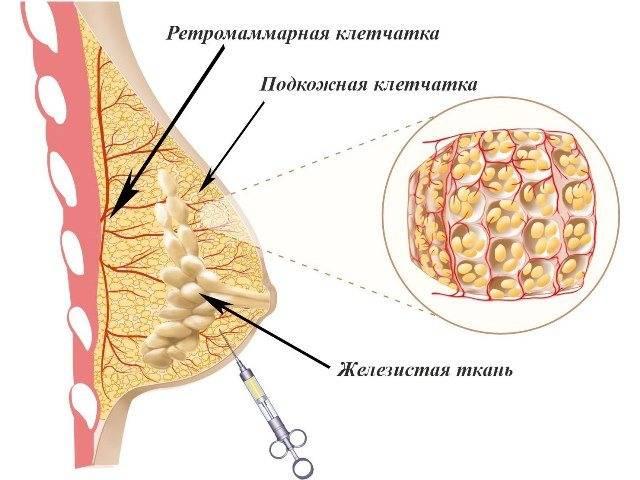 Как увеличивают грудь гиалуроновой кислотой
