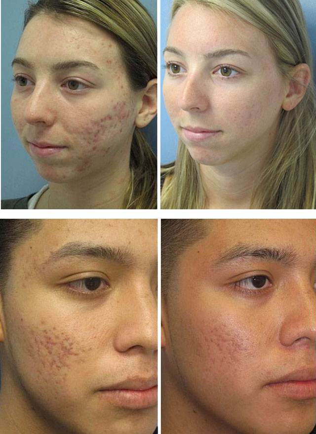 Причины акне на лице и лечение в домашних условиях