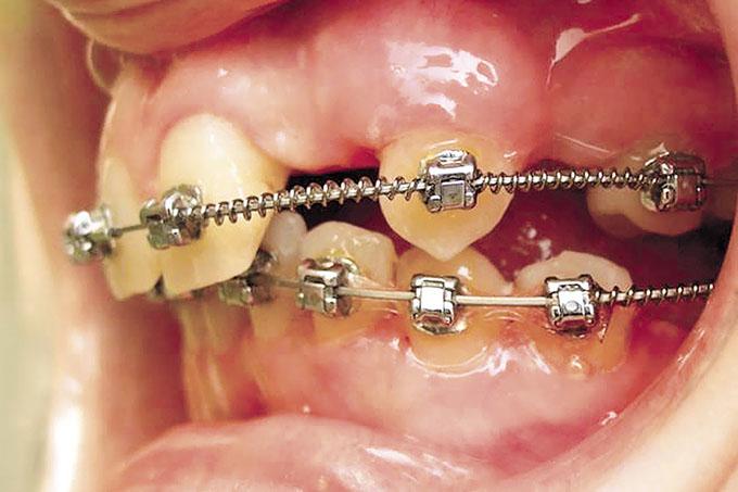 Зубной врач: что делает, чем отличается от стоматолога-терапевта и детского стоматолога