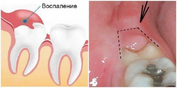 Что делать, если болит десна возле зуба мудрости