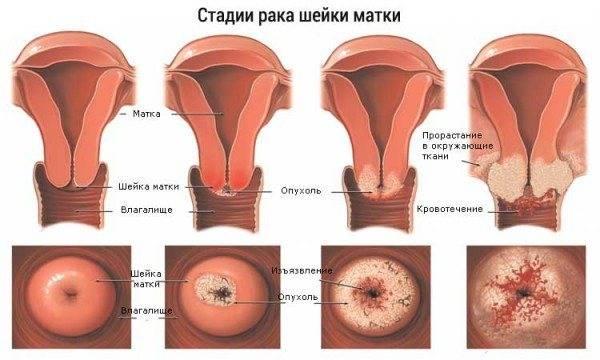Рак матки (рак эндометрия)