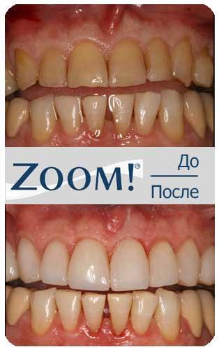 Отбеливание зубов как долго держится эффект