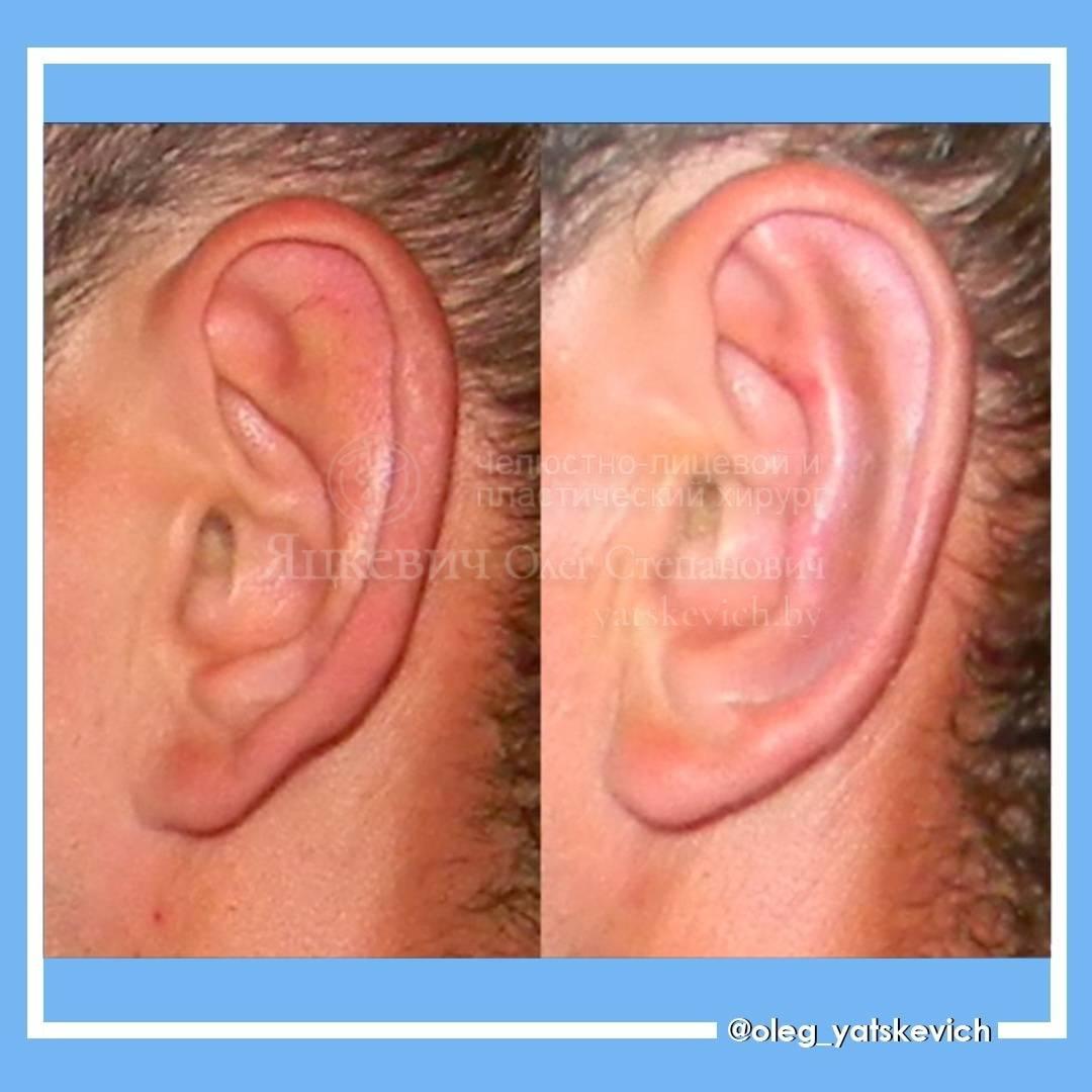 Виды деформаций ушной раковины — диагностика, причины и коррекция