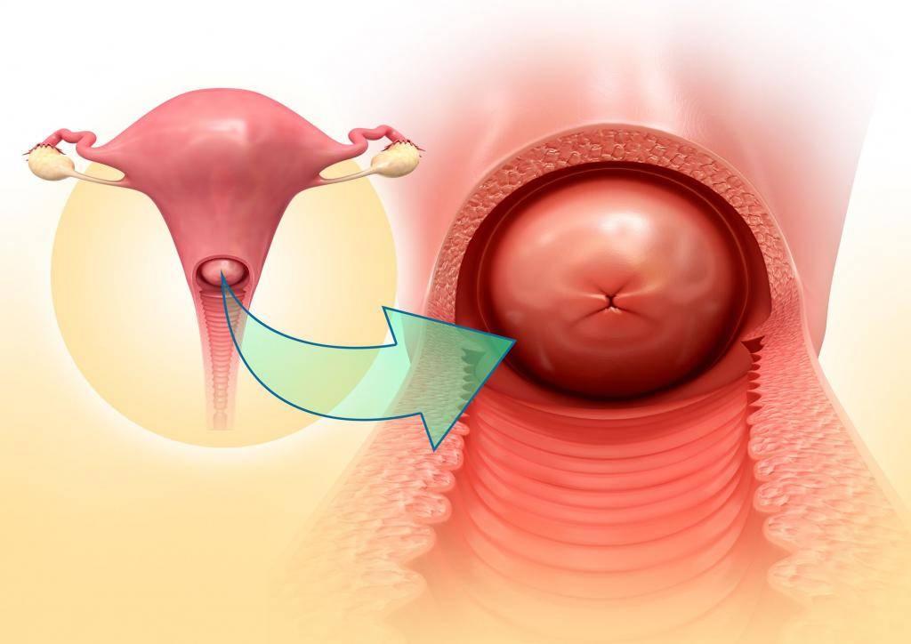 Можно ли рожать с эрозией шейки матки: рекомендуется ли это до и после прижигания, а также каким образом заболевание влияет на вероятность зачатия?