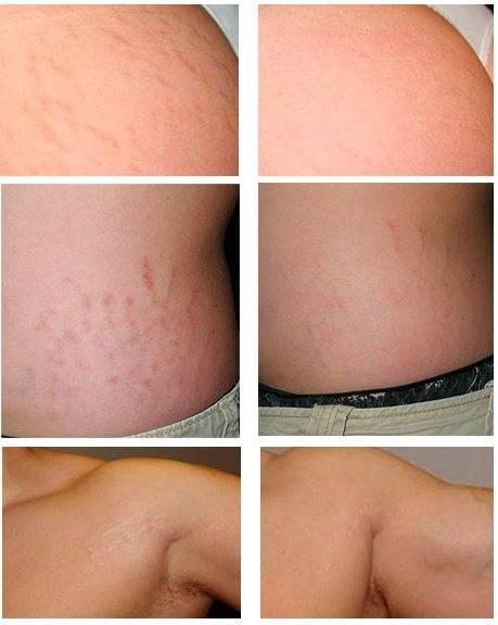 Как лазер удаляет растяжки на коже: обзор метода борьбы со стриями
