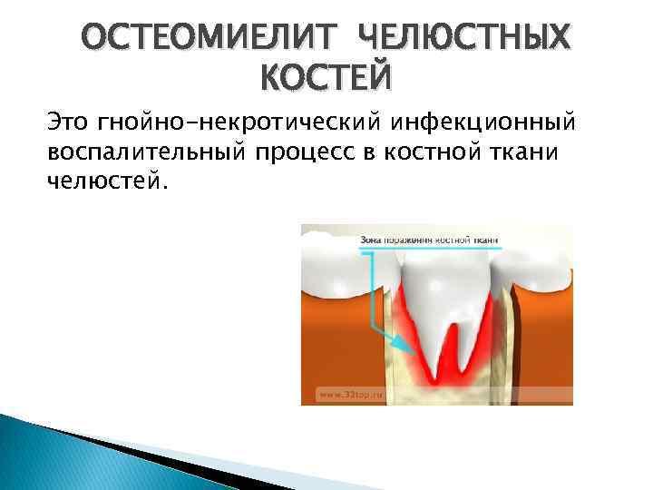 Остеомиелит верхней челюсти симптомы лечение