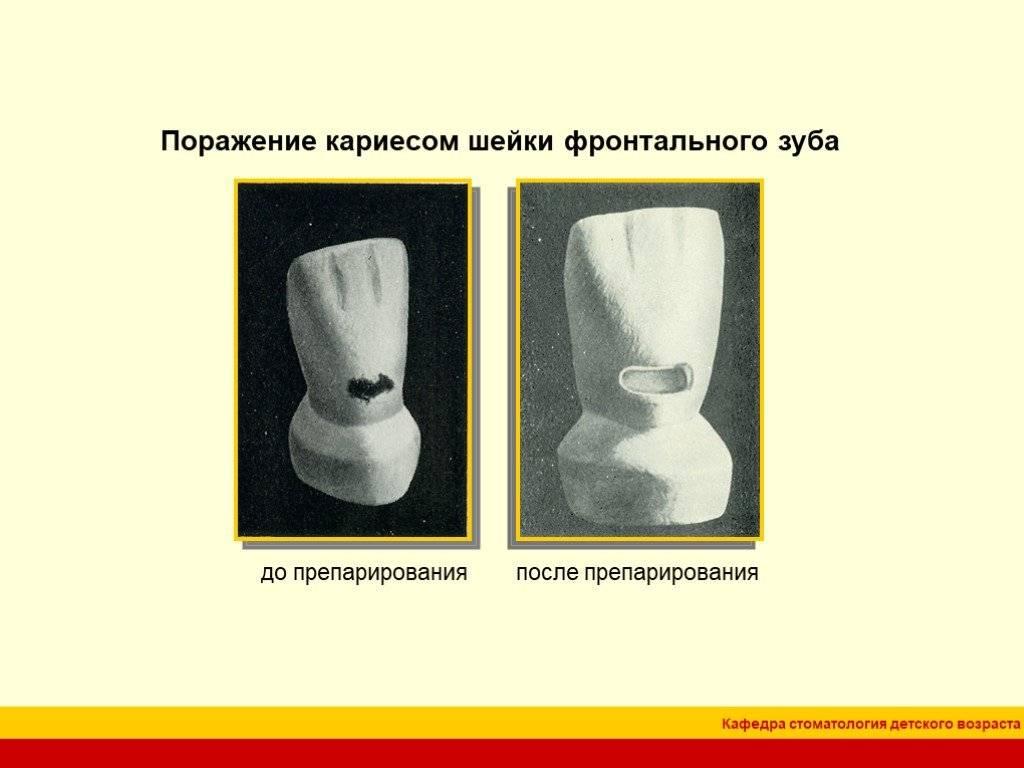 6.6.1. принципы и техника препарирования твердых тканей зуба при кариесе