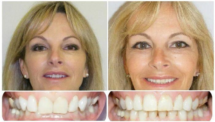 Стоматологические капы для выравнивания зубов: виды для исправления прикуса