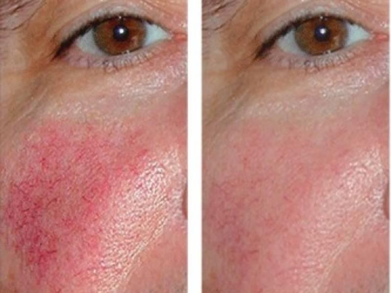 Народные методы в домашней борьбе против купероза на лице