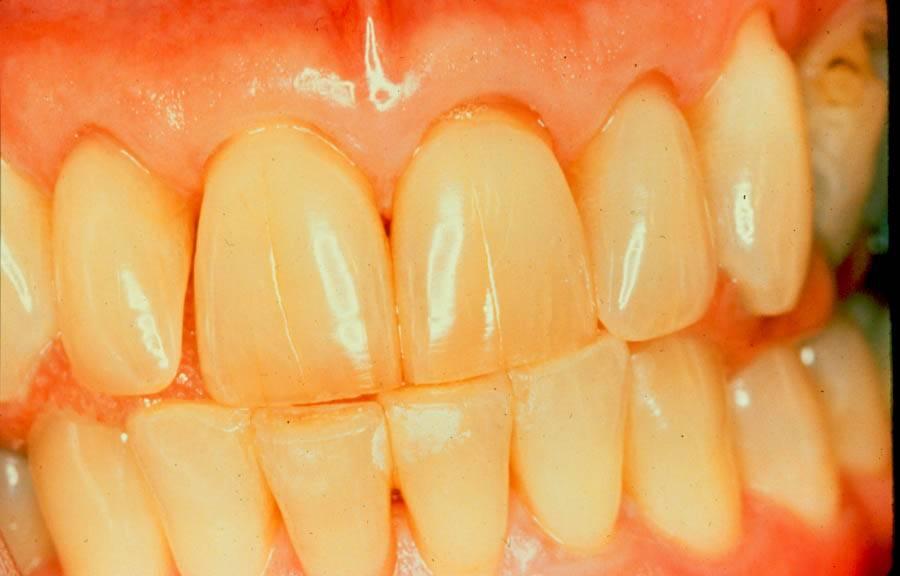 Желтые зубы у ребенка: возможные причины и профилактика пегментации