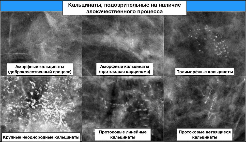 Одиночные и множественные микрокальцинаты в молочных железах