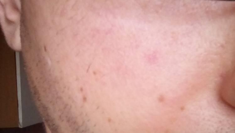 Когда легкий румянец превратился в пылающий изъян: причины красных пятен на лице у женщин