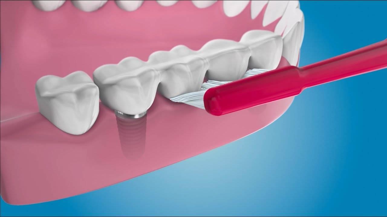 Какие рекомендации по уходу дают врачи после вживления зубных имплантов