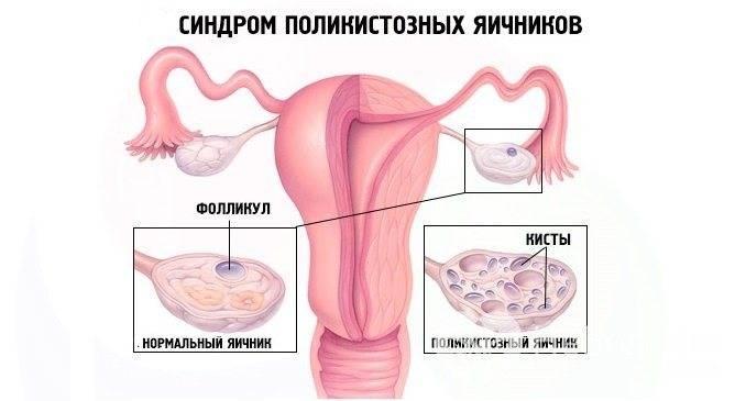 Дисфункция яичников: причины, диагностика и лечение