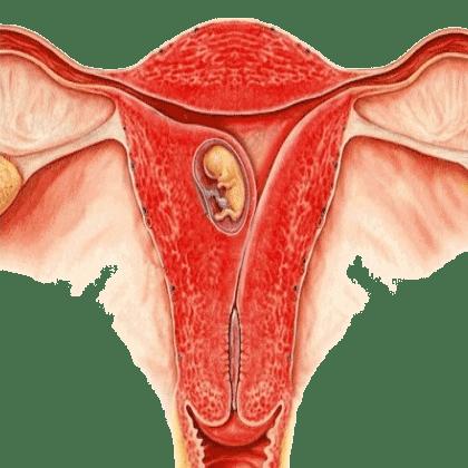 Месячные при миоме матки: обильные, скудные, задержка