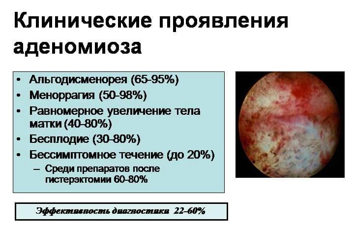 Аденомиоз матки лечение народными средствами отзывы