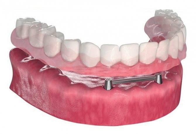 Основные виды протезирования зубов