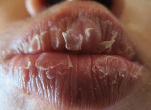 Белые пятна на половых губах