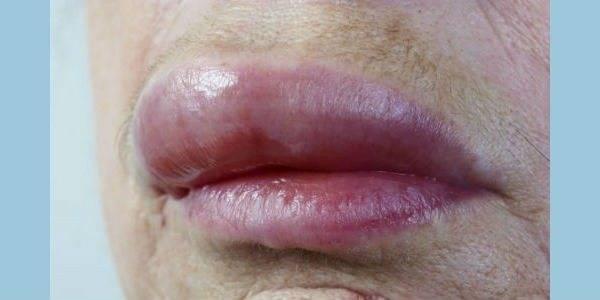 Почему могут опухнуть губы и что с этим делать?