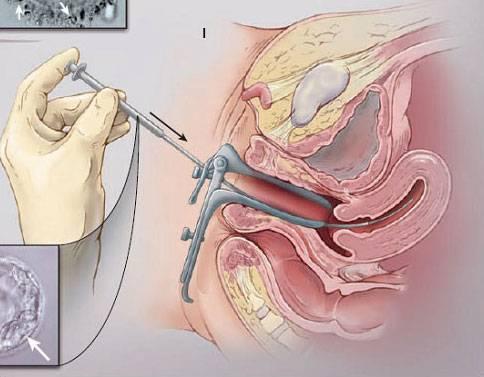 Беременность после гистероскопии – планирование зачатия ребенка и возможные проблемы