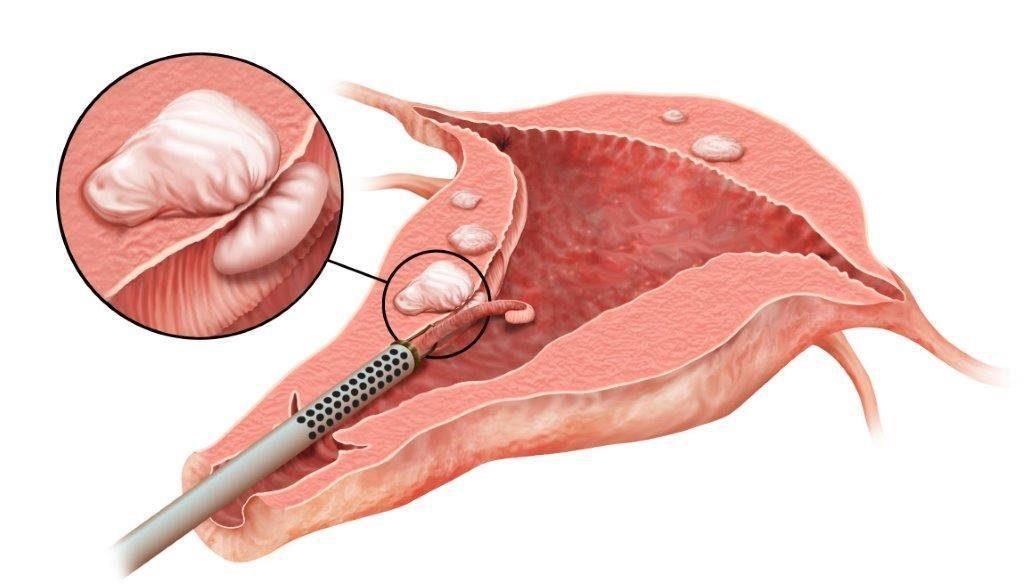 Удаление полипа эндометрия — как делают, последствия, наркоз