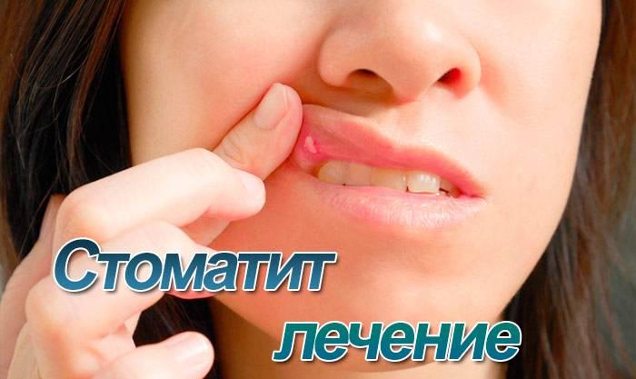 Чем лечить стоматит во рту у взрослых