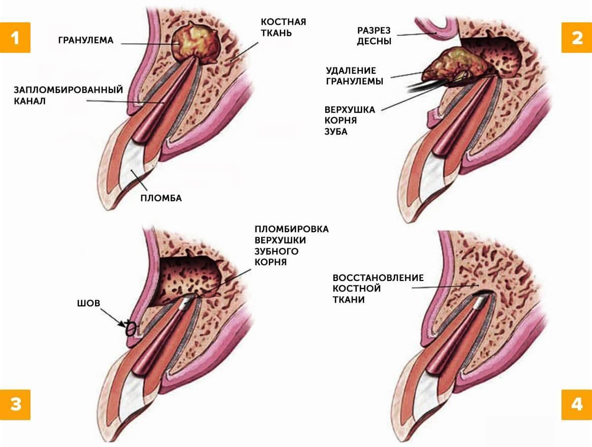 Способы лечения гранулемы зуба