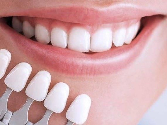 Как сделать клыки вампира из фольги. зубы-клыки, как нарастить и стоит ли