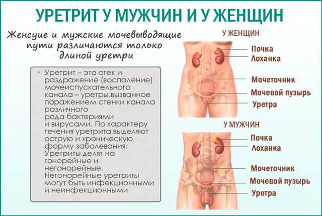 Уретрит: симптомы
