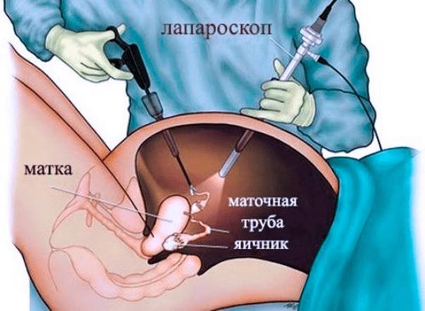 Удаление кисты яичника