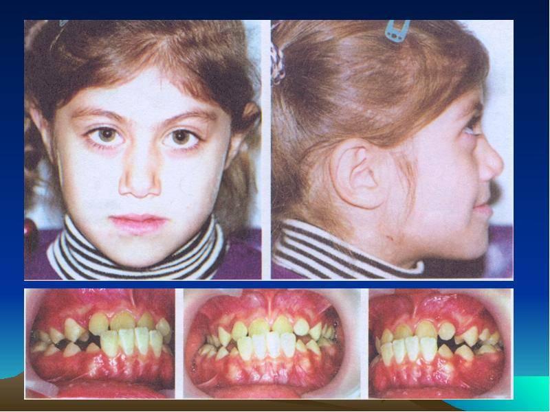 Современные методы расширения нижней и верхней челюсти