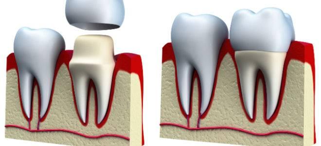 Выпала вкладка из зуба — что делать?