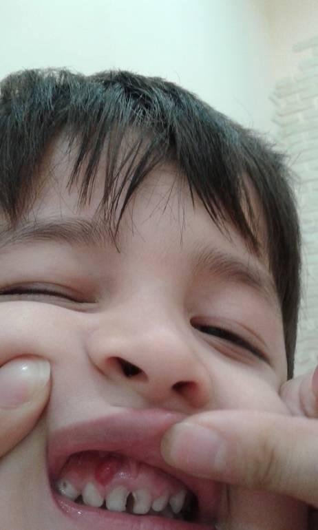 Шишка над молочным зубом не болит