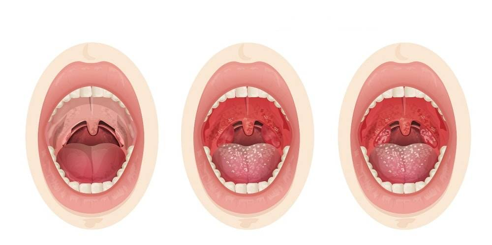Бактериальный тонзиллит симптомы и лечение